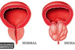 próstata (Imagem divulgação)