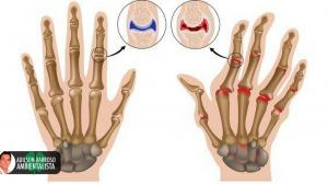 artrite (Imagem divulgação)