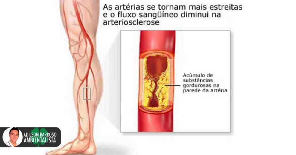 arteriosclerose (Imagem divulgação)