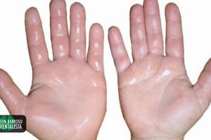 mãos (Imagem divulgação)