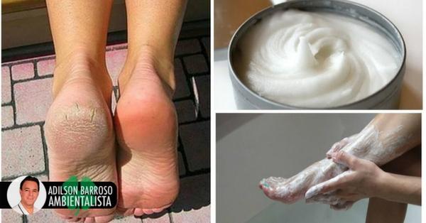 Elimine o fungo e os calos dos pés com este incrível remédio caseiro