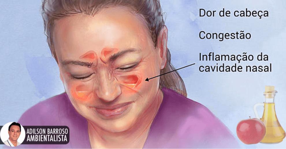 Sinusite (Imagem divulgação)