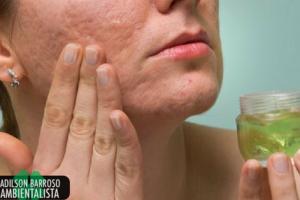 5 grandes benefícios do gel de aloe vera para cuidar da sua pele