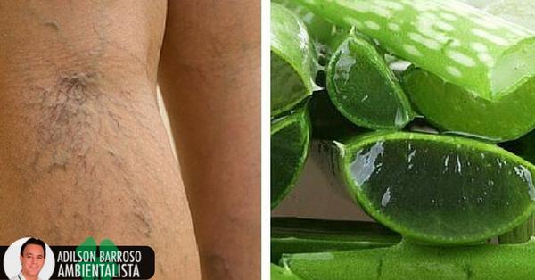 7 chaves para melhorar a circulação de suas pernas em 20 dias