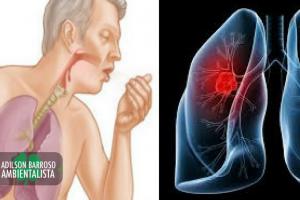 bronquite (Imagem divulgação)