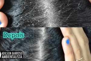 couro cabeludo (Imagem divulgação)