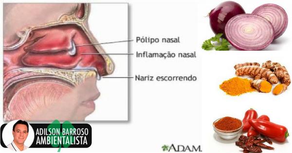 5 remédios caseiros para pólipos nasais