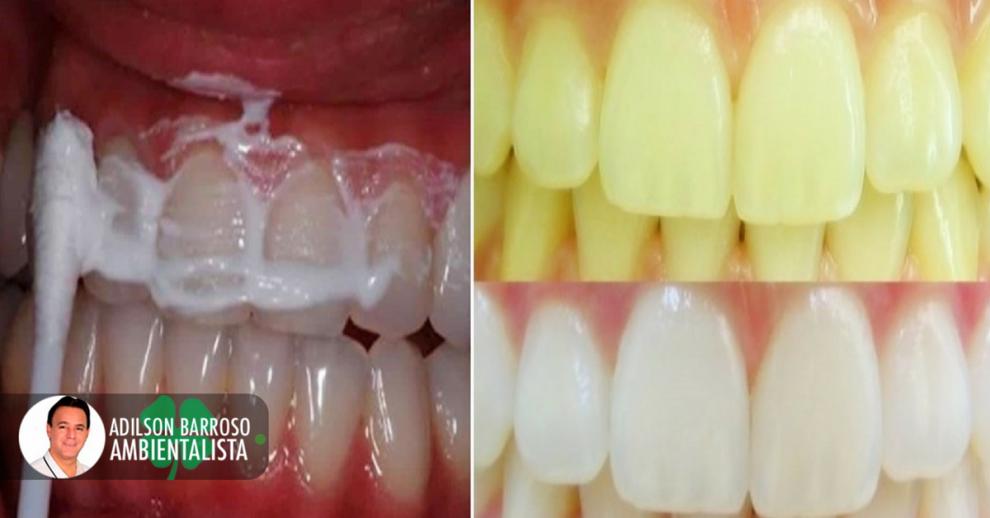 dentes (Imagem divulgação)