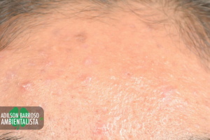 dermatite (Imagem divulgação)