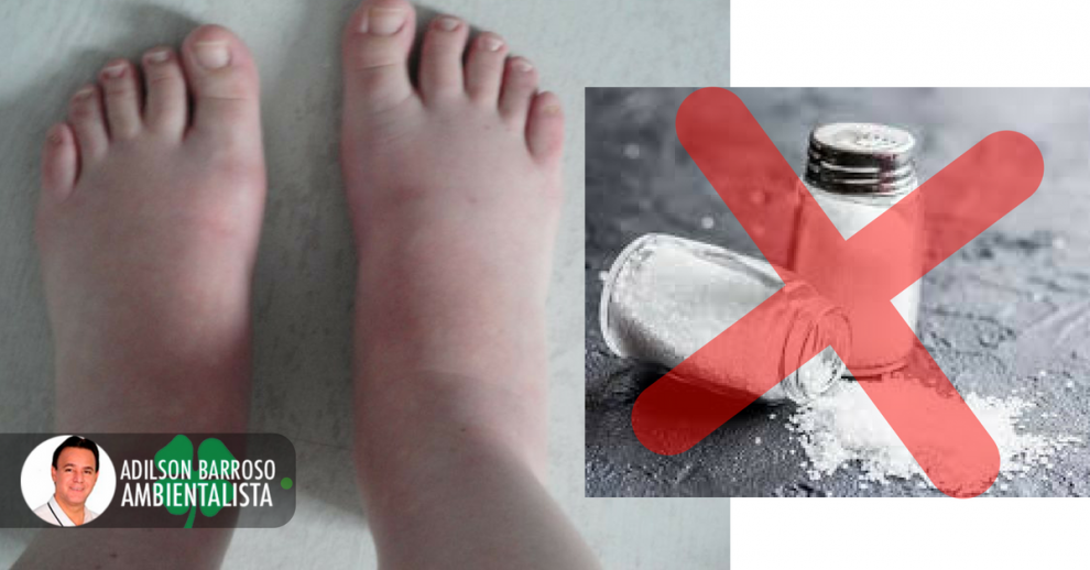 pés (Imagem divulgação)