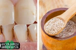 Como remover o tártaro de seus dentes naturalmente