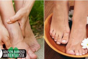 2 tratamentos externos para curar a dor no pé