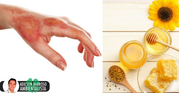 Como curar uma queimadura com remédios caseiros