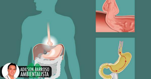 Hérnia de hiato: causas e remédios naturais para tratá-lo