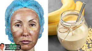 Como fazer um tratamento de iogurte, banana e limão para atenuar o melasma