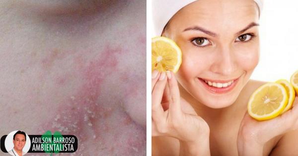 Remédios naturais eficazes para a dermatite seborreica