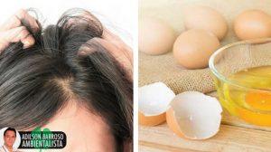 Sofre de coceira no coura cabeludo? Veja como acabar com ela