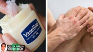 Prepare uma pomada de vaselina e casca de olmo para reumatismo