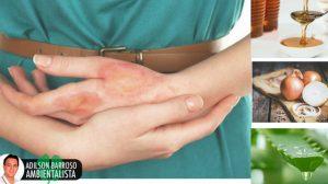 Queimaduras nos dedos: 7 remédios caseiros para aliviá-los
