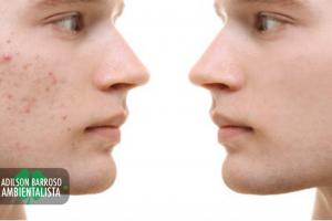 acne (Imagem divulgação)