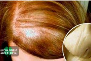 cabelo (Imagem divulgação)