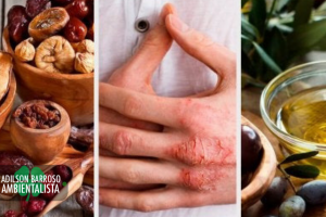 eczema (Imagem divulgação)