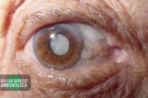 olhos (Imagem divulgação)