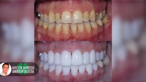 dentes brancos (Imagem divulgação)